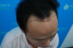 瑞士NAT美学植发是改善脱发好的技术吗
