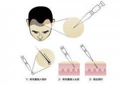 SEP超级微针植发和其他技术有何不同